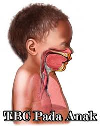 Setiap Detik Berharga, Selamatkan Anak Dari Tuberkulosis